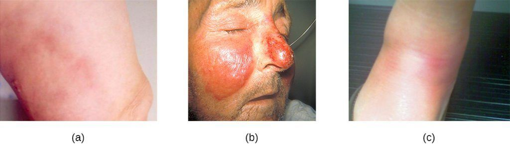 best of Staph culture abcess growth Facial heavy